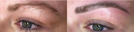 eyebrow microblading before after