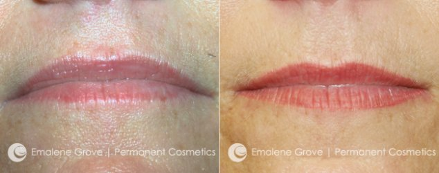 Permanent Cosmetics by Emalene Grove - Lip Treatment